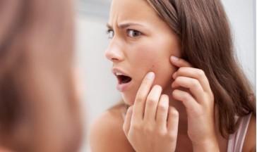 ACNE NO! Tutto quello che devi sapere per liberarti dell'acne.